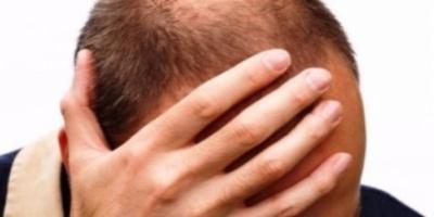 Νέα θεραπεία υπόσχεται το τέλος της φαλάκρας