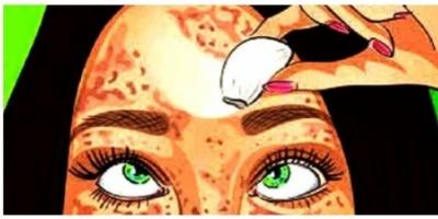 Απίστευτο: Δείτε πώς θα σβήσετε τα σημάδια από το δέρμα σας σαν να έχετε γόμα!!